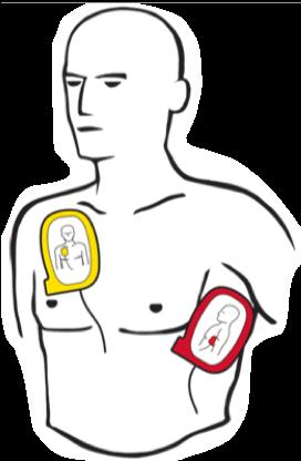 Hjertestarter vejledning