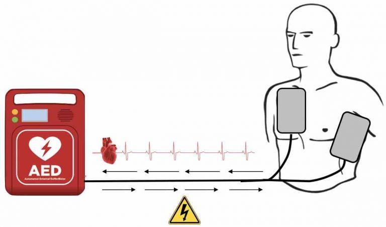 Hjertestarter opbygning