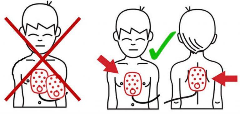 Korrekt påsætning af elektroder hos børn