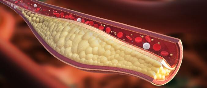 cholesterol677-2